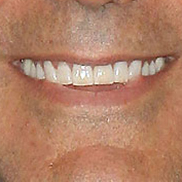 Sourire George Clooney