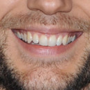 Sourire Henry Cavill