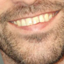 Sourire Romain Duris