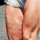 Cellulite Britney Spears