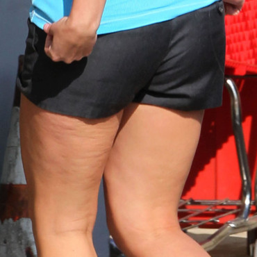 La cellulite de Britney Spears