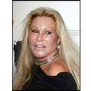 Jocelyn Wildenstein chirurgie